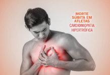 Morte Súbita - Cardiomiopatia Hipertrofica | Paulo Sadala (Revista Correr)