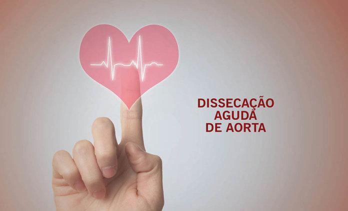 Dissecação Aguda de Aorta - Dr. Paulo Sadala   Revista Correr